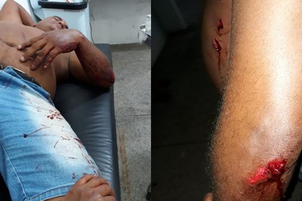 Vítima é alvejada a tiros em suposta tentativa de assalto em Floriano.(Imagem:Divulgação)