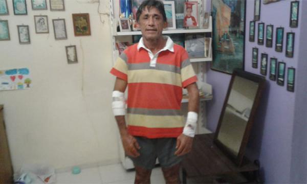 Joaquim Saraiva fica ferido após ser atacado por cachorro.(Imagem:Reprodução/Whatsapp)