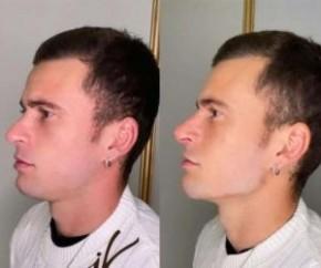 O procedimento foi realizado na clínica JK Estética Avançada, em São Paulo. ?O Lucas usava aquela barba porque não queria mostrar o rosto dele. Ele se incomodava pelo fato do forma(Imagem:Reprodução)